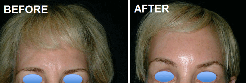 Forehead lift2.PNG (855×291)