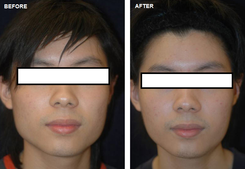 botox for face slimming.PNG (793×548)