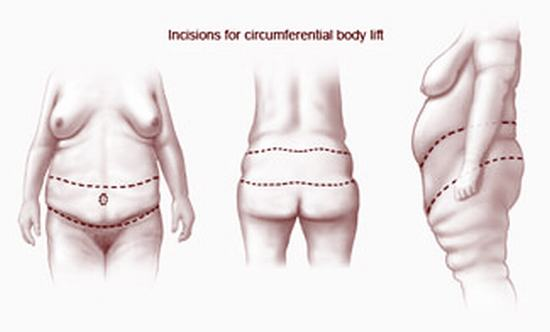 incisions-circumferential-bodylift-2.jpg (325×196)
