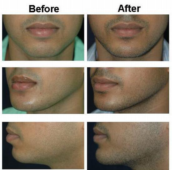 Chin Augmentation In Thailand Best Cosmetic Surgeon Bangkok